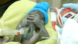 Baby Gorilla Delivered Via C-Section At San Diego Zoo - Video