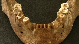 Scientists Reveal Stone Age Man's Sweet Tooth - Video