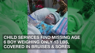 Child Services Find Missing Age 6 Boy Weighing Only 13 Lbs, Covered in Bruises & Sores - Video