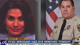 Pima County deputy has eye removed after woman kicks him in face