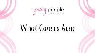 All About Acne: What Causes Acne? - Video