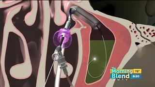 Ear, Nose and Throat Consultants - Video