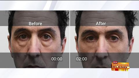Rapidly Fix Puffy Eyes in Minutes