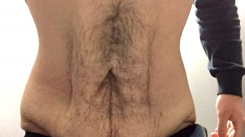 Flabby to fitty! Man undergoes life-threatening trial surgery to remove 'potato sack' excess skin