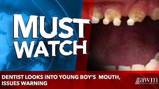 Dentist Looks Into young boy's Mouth, Issues Warning