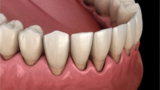Study Links Serious Gum Disease to Dementia Decades Later