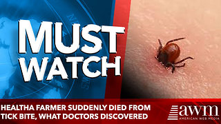 A Farmer Suddenly Died From Tick Bite, What Doctors Discovered Left Them Terrified - Video