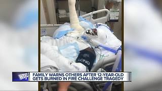 Metro Detroit girl injured after doing the Fire Challenge