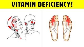 Vitamin B12 Deficiency Symptoms That Should Never Be Ignored
