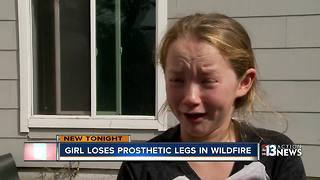 prosthetic legs burned - Video
