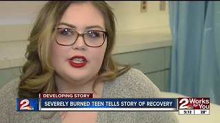 Burn survivor brings awareness to National Burn Week