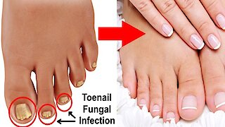 3 simple & effective natural cures for toenail fungus