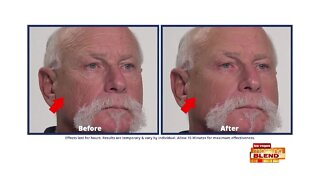 Reduce Wrinkles & Look Younger