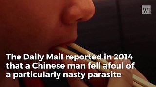 12 Hours After Eating Sushi, Man Forced To Have Arm Amputated