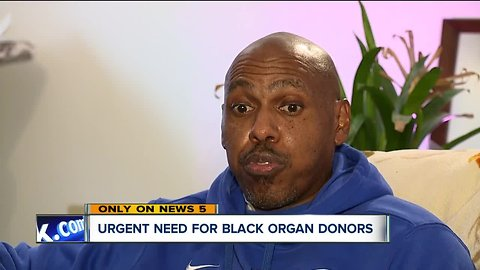 Organ donor pool needs more diversity, experts say