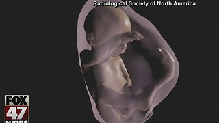 Virtual reality used in new ultrasounds - Video