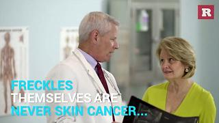 Facts About Your Freckles | Rare Life - Video