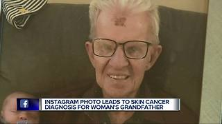 Metro Detroit doctor spots cancer from Instagram photo, possibly saving man's life - Video