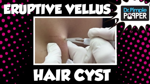 Unusual types of Cysts: Eruptive Vellus Hair Cysts, Part 1 in a Series