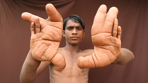 The Boy With The Giant Hands | Born Different