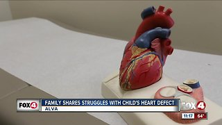 Family shares struggles with child's heart defect