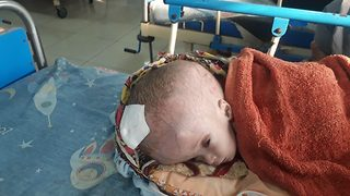 Pakistani baby with head almost the size of a football awaits surgery
