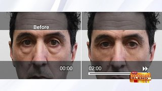 Watch Signs of Aging Disappear in Minutes