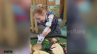 Sweet girl playing with her new 'Frozen'-themed prosthetic arm will warm your heart