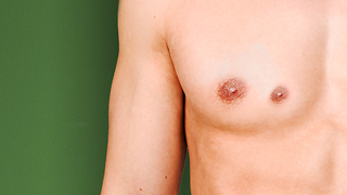 Having an extra nipple is actually considered to be common and is the result of a slight variation that starts during embryonic development. - Video