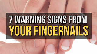 7 Warning Signs from Your Fingernails - Video
