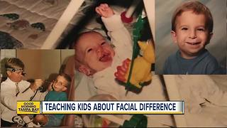 Tampa man helping others understand facial deformity conditions ahead of new movie 'Wonder' - Video