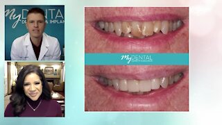 Embarrassed by your smile? Why your smile matters at My Dental Dentistry and Implants