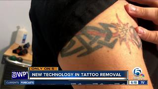 ReversaTatt: New technology helping people eliminate unwanted tattoos - Video