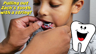 Pulling out loose tooth with a string!!! - Video