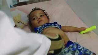 Malnutrition Among Children in East Damascus Increases As Food Prices Rise - Video