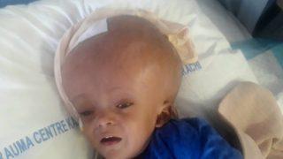 Pakistani baby with head the size of football awaits life-changing surgery