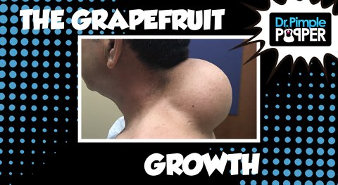 THE Grapefruit-sized Growth!