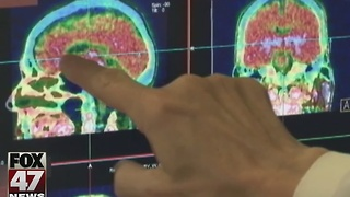 Pediatricians give long-term recommendations for concussions - Video