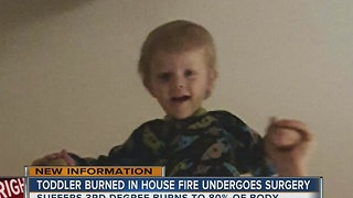 Toddler Burned In House Fire Undergoes Surgery - Video