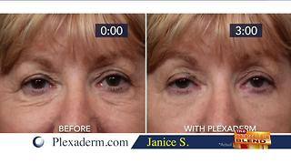 Getting Rid of Under Eye Bags in Minutes! - Video