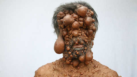 Dad's Entire Body Is Covered In Tumours: BORN DIFFERENT