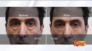 Lose Your Under Eye Bags and Save Your Money - Video