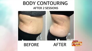 Body Contouring That Works
