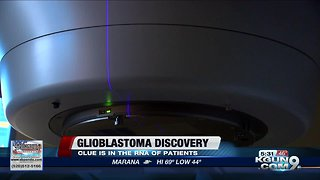 UA researchers find clue in fight against glioblastoma