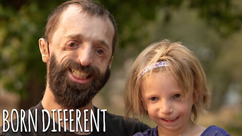 Father And Daughter Battle Rare Facial Condition   BORN DIFFERENT