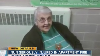 Sister Ruth in burn center - Video