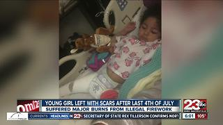 Young girl left with scars after last Fourth of July