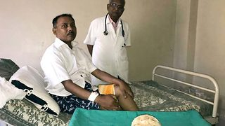 Doctors remove bladder stone the size of a coconut from patient in agony - Video