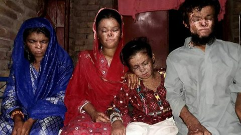 Pakistani siblings with extreme skin disorder that has eaten away one's nose and blinded another hopes for miraculous treatment