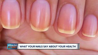 What Your Nails Say About Your Health - Video